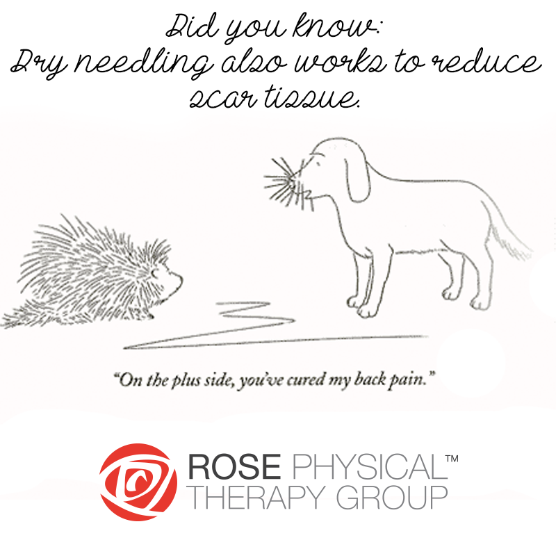 Dry Needling   Rose Physical Therapy Group